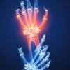 Thumbnail image for The Major Kinds of Arthritis
